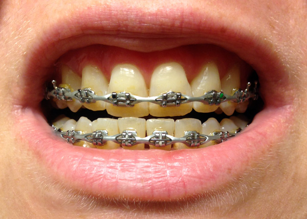 braces adjustment, september 2014